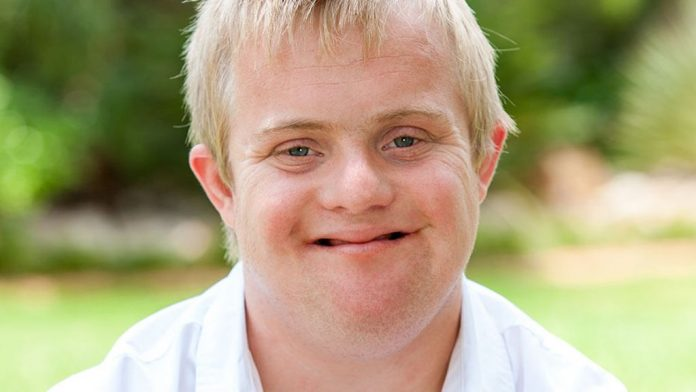 Noah Stokes is valuable even with Down syndrome