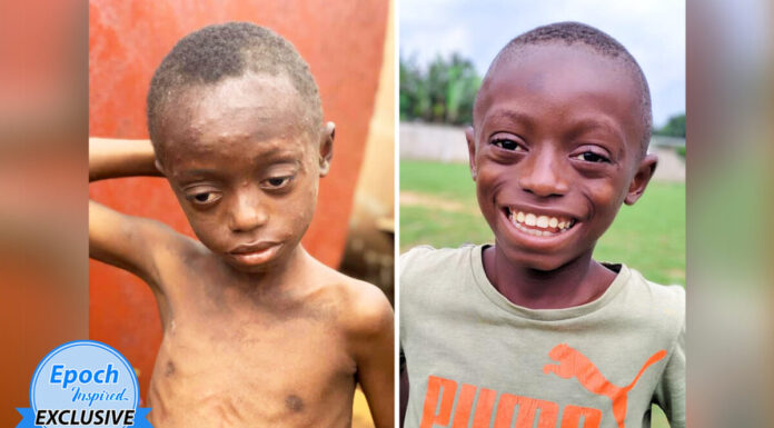 Saviour Before and After